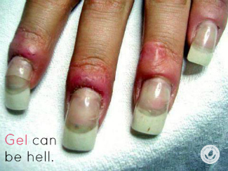 Gel manicures last longer, it's true. But dermatologists hate them because of problems with infection, nail damage and cancer. Is a gel manicure worth it?